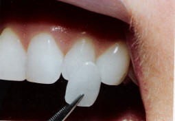Conservative Veneers