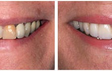 Smile Enhancement with Procera Crowns