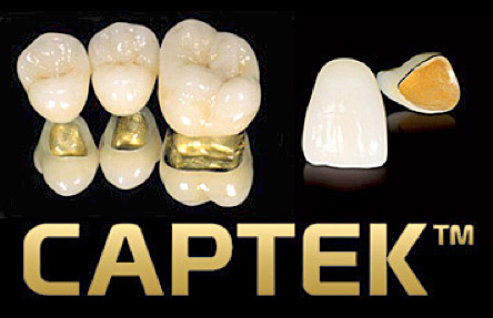 Captek