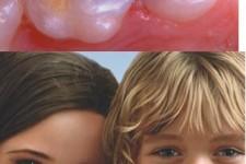 Calzas de colores para dientes de leche