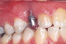 Implante de 1 pieza colocado sin cirugia en 1 cita en espacio de 5mm y corona cad/cam de zirconio a los 4 meses